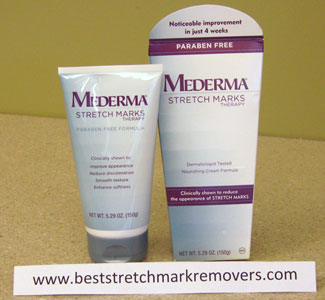 Mederma Stretch Marks Cream Review