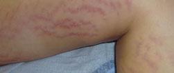stretch_marks_on_legs