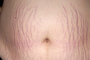 Overweight Stretch marks