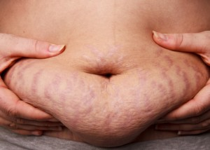 obese stretch marks