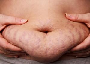 obese stretch marks