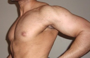 stretch marks can occur in men