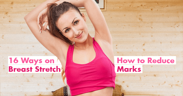 16 Ways on How to Reduce Breast Stretch Marks